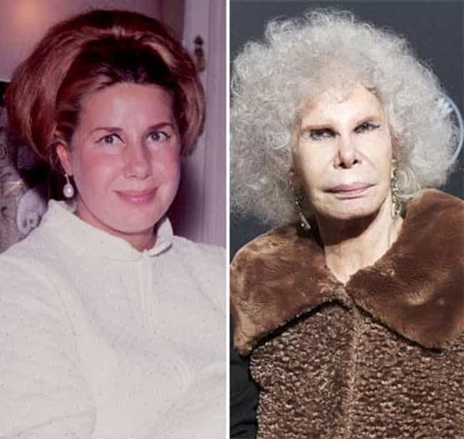 Duchess of Alba is listed (or ranked) 2 on the list 27 Celebs Who Lost Their Sex Appeal After Plastic Surgery
