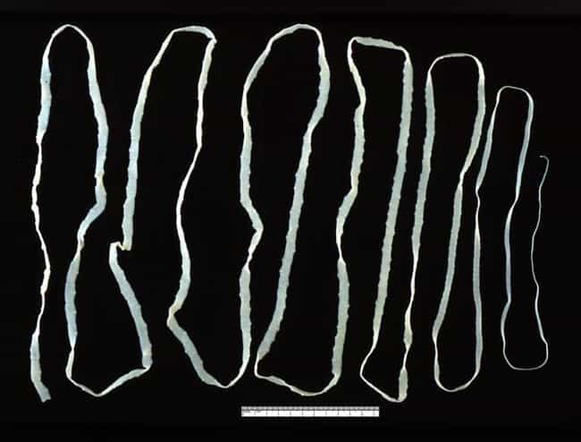 Tapeworm Diet is listed (or ranked) 1 on the list Weirdest Diets Where People Lost Weight