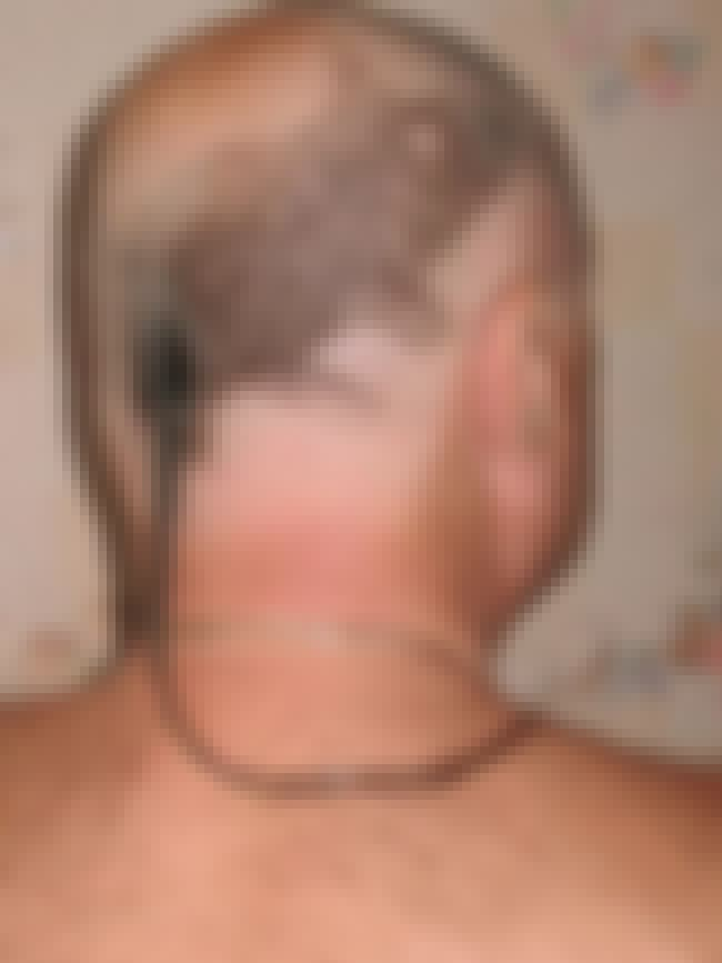 The Rat Tail is listed (or ranked) 3 on the list The Absolute Worst Hairstyles of All Time