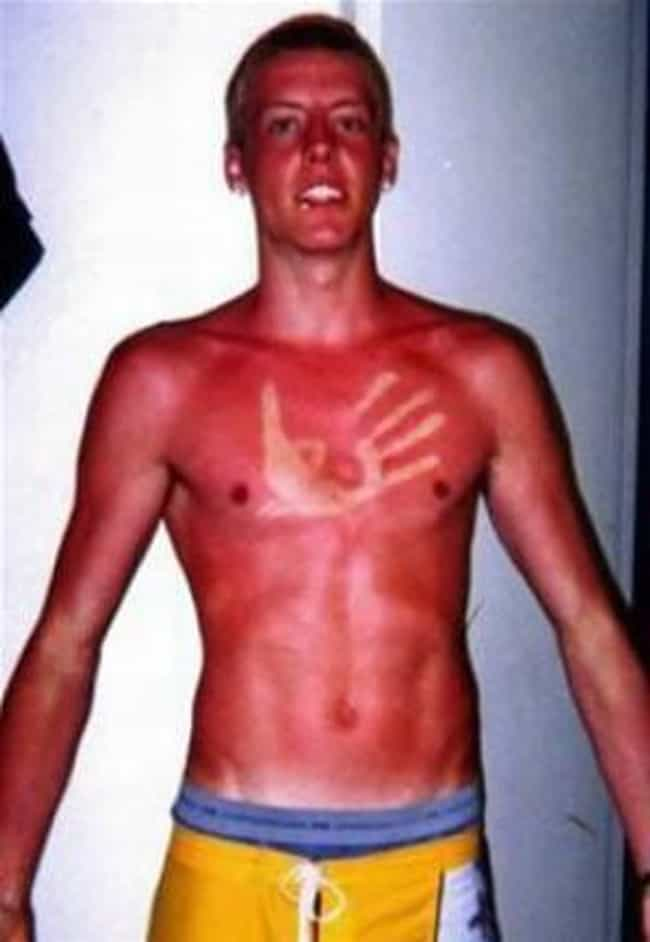 This Guy Who Loves That ... is listed (or ranked) 3 on the list 39 Epic and Painful Sunburns