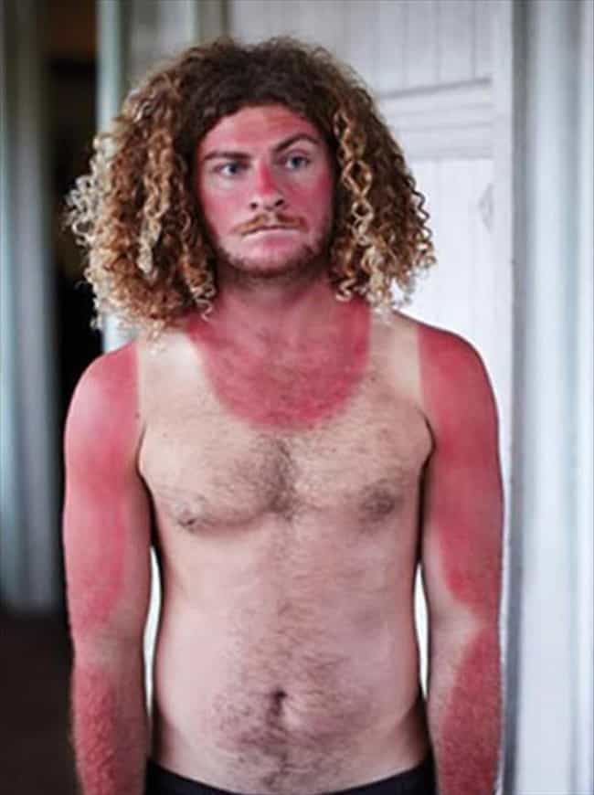 This Lobster With The Ta... is listed (or ranked) 8 on the list 39 Epic and Painful Sunburns