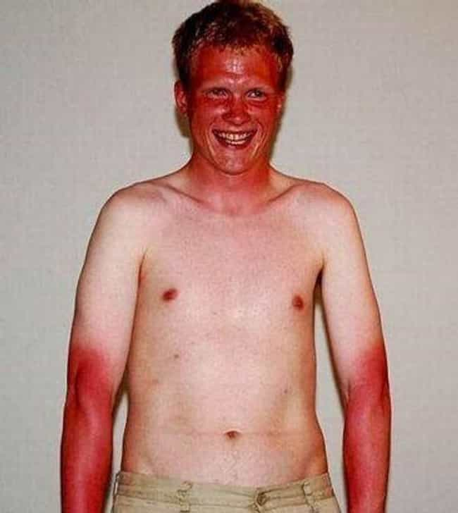 A Ghost Of A Shirt is listed (or ranked) 6 on the list 39 Epic and Painful Sunburns