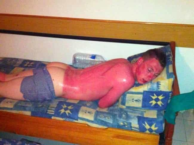 Bilderesultat for worst sunburned