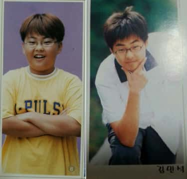 Kpop Male Idols Before And After Plastic Surgery