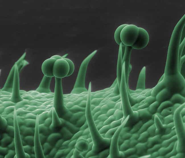 This Gecko Foot! is listed (or ranked) 4 on the list 20 Awesome Things Seen Through a Microscope