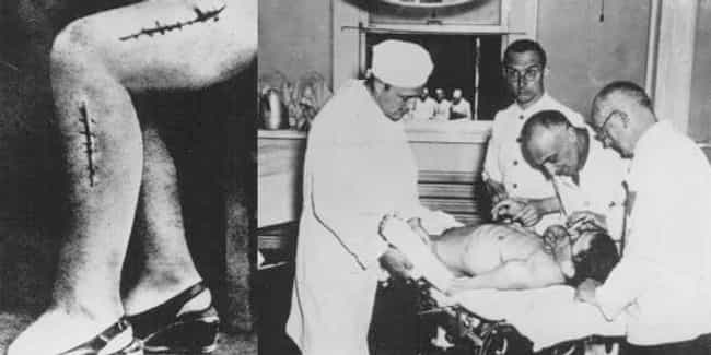 Bone Grafting is listed (or ranked) 4 on the list The Most Horrifying Nazi Experiments on Humans