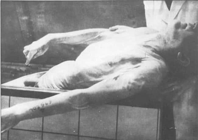 bộ sưu tập xương người do thái của đức