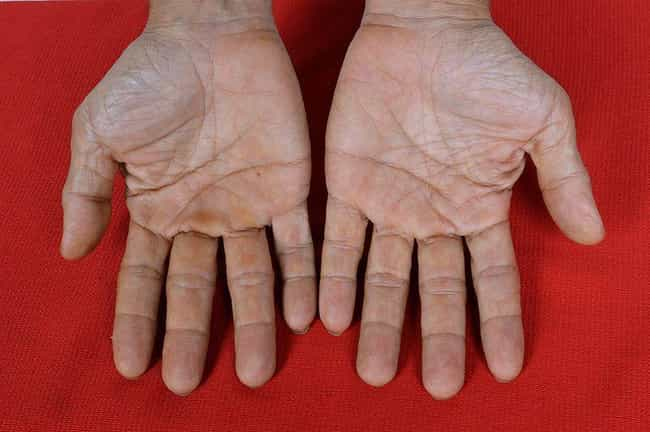 Change Your Palm Reading for G... is listed (or ranked) 5 on the list The Most Bizarre Plastic Surgery Procedures