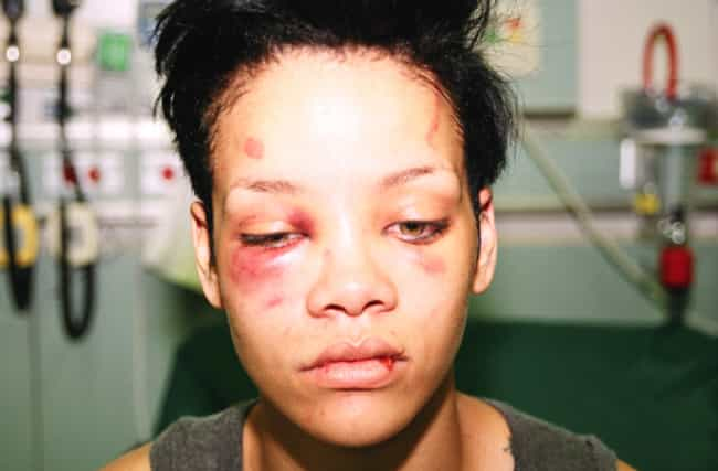 Violently Assaulted Rihanna is listed (or ranked) 2 on the list The Worst Things Chris Brown Has Ever Done