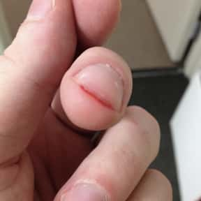 Under Your Fingernail