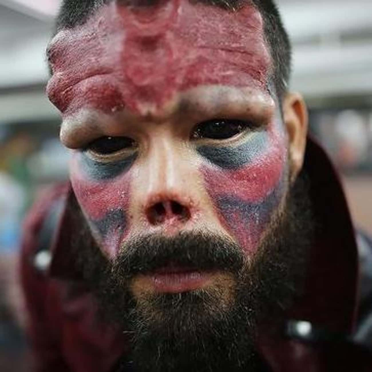 Henry Damon's Red Skull Modifi is listed (or ranked) 1 on the list The Most Extreme Body Modifications Ever