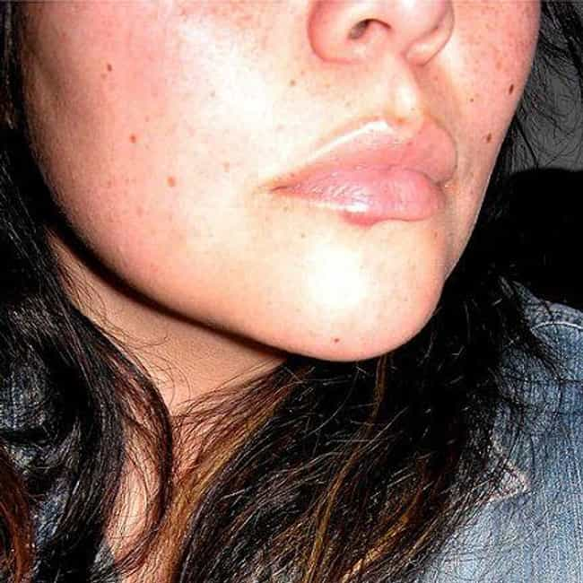 Oral Herpes is listed (or ranked) 2 on the list 16 Medical Conditions Basically Everyone Has