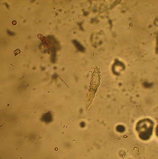 Demodex Mites is listed (or ranked) 4 on the list 16 Medical Conditions Basically Everyone Has