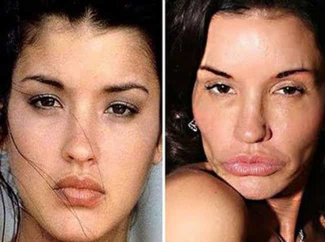 Janice Dickinson Gets the Full... is listed (or ranked) 3 on the list 19 Freaky Cases of Lip Injections Gone Wrong