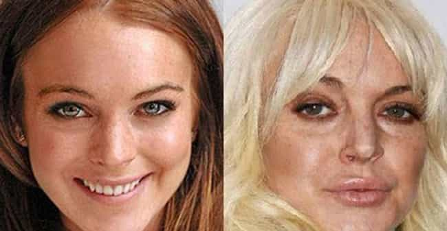 How Low Can LiLo Go? is listed (or ranked) 4 on the list 19 Freaky Cases of Lip Injections Gone Wrong