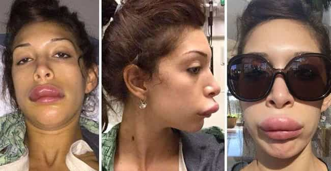 Farrah Abraham's Extremely... is listed (or ranked) 1 on the list 19 Freaky Cases of Lip Injections Gone Wrong