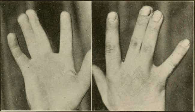 Non-Fused Fingers is listed (or ranked) 2 on the list The Most Common Recessive Genes In Humans