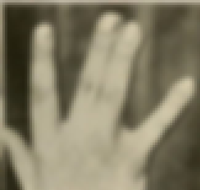 Non-Webbed/Fused Fingers is listed (or ranked) 2 on the list The Most Common Recessive Genes in Humans