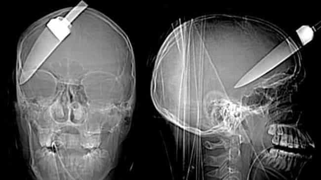 Although He Fully Recovered, T... is listed (or ranked) 1 on the list Brutal X-Ray Pictures That Will Make Your Bones Hurt