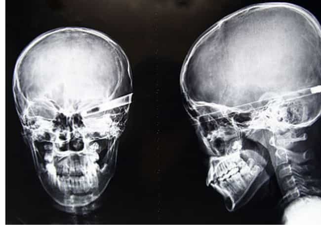 Brutal X-Ray Pictures That Will Make Your Bones Hurt