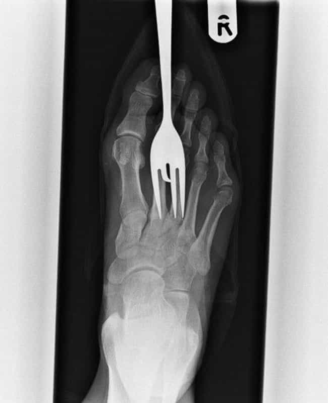 Always Look Out for Forks is listed (or ranked) 3 on the list Brutal X-Ray Pictures That Will Make Your Bones Hurt