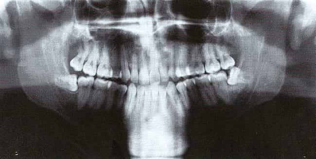 Wisdom Tooth Removal is listed (or ranked) 1 on the list Seemingly Simple Surgeries That Could Go Horribly Wrong