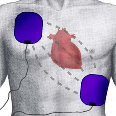 It Actually Stops Your Heart is listed (or ranked) 1 on the list What Happens to Your Body When a Defibrillator Is Used on You