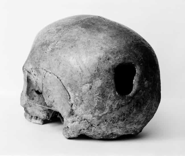 Trepanning is listed (or ranked) 3 on the list 12 Ancient Health Practices That Killed People Quicker Than Just Doing Nothing