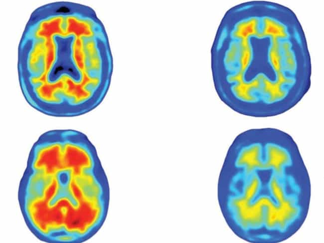 Possibly Game-Changing Alzheim... is listed (or ranked) 3 on the list The Greatest Scientific Breakthroughs of 2016