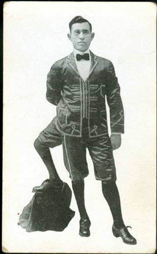 The Three-Legged Man is listed (or ranked) 1 on the list 16 Famous Circus Sideshow Performers in History That Were Truly Bizarre