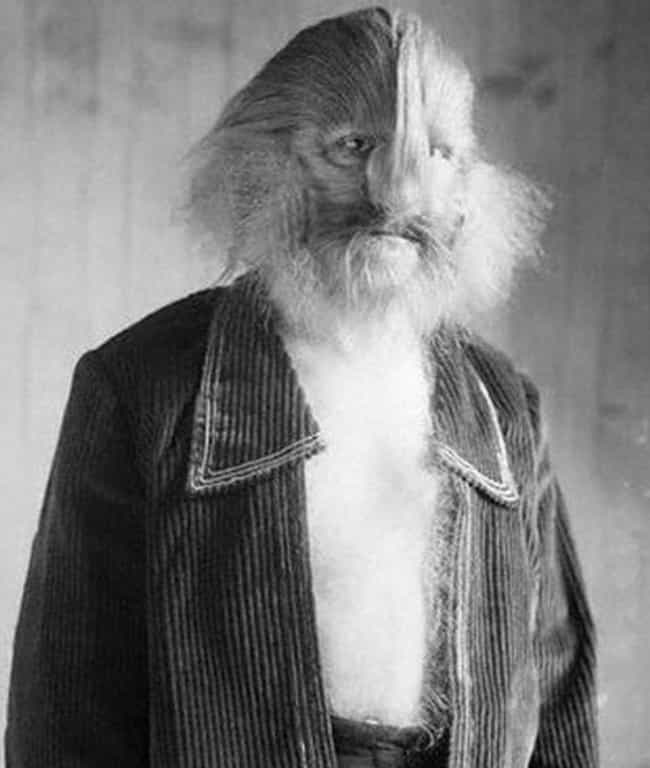 The Lion-Faced Man is listed (or ranked) 2 on the list 16 Famous Circus Sideshow Performers in History That Were Truly Bizarre