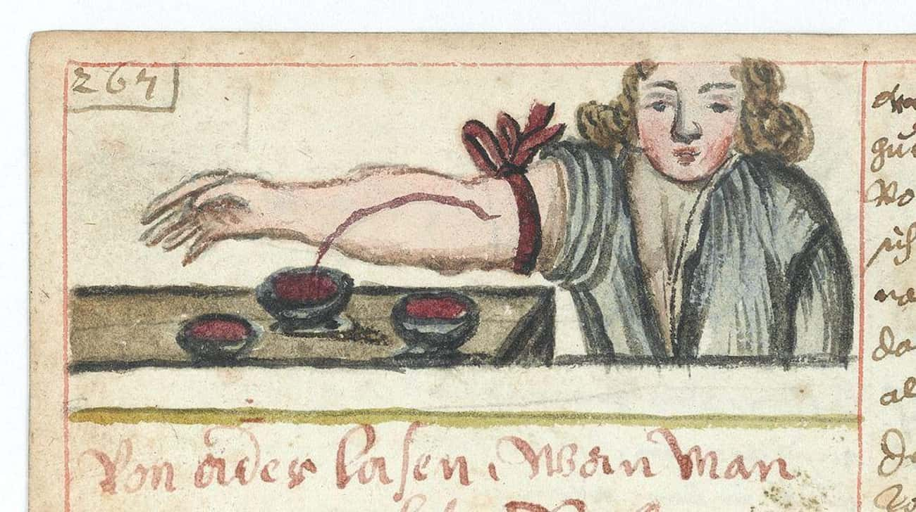 Bloodletting to Cure Everythin is listed (or ranked) 2 on the list 10 Bizarre and Bloody Practices of Medieval Barbers