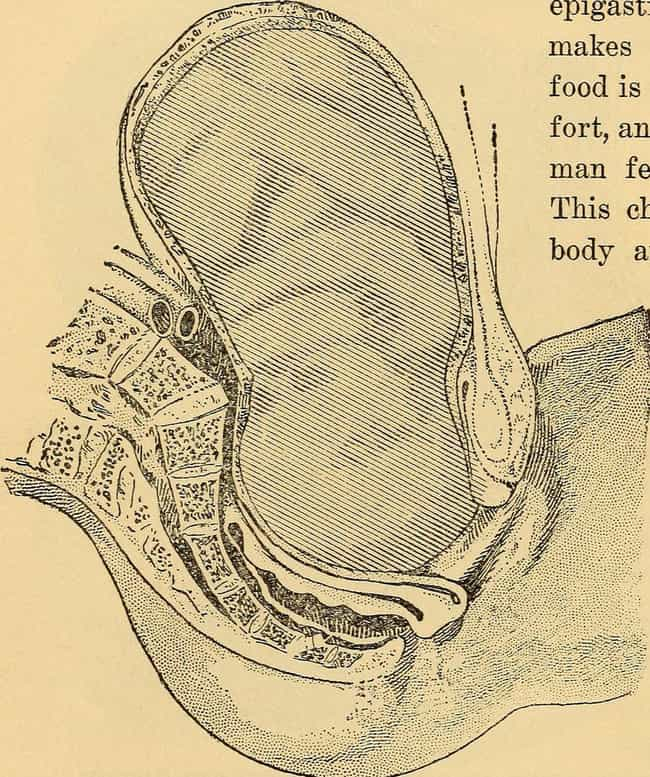 Fetal Destructors is listed (or ranked) 3 on the list 13 Horrifying Ancient Medical Devices That People Actually Used