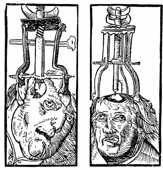 Trepanation Devices is listed (or ranked) 4 on the list 13 Horrifying Ancient Medical Devices That People Actually Used