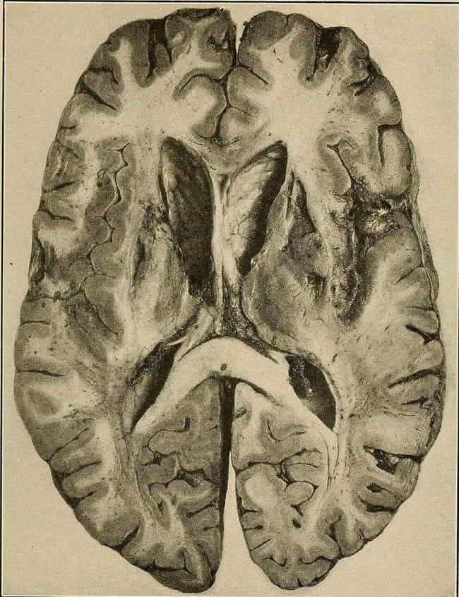 Softening of the Brain is listed (or ranked) 4 on the list From Miner's Anemia to Blackwater Fever: 24 Bizarre Old-Fashioned Medical Terms