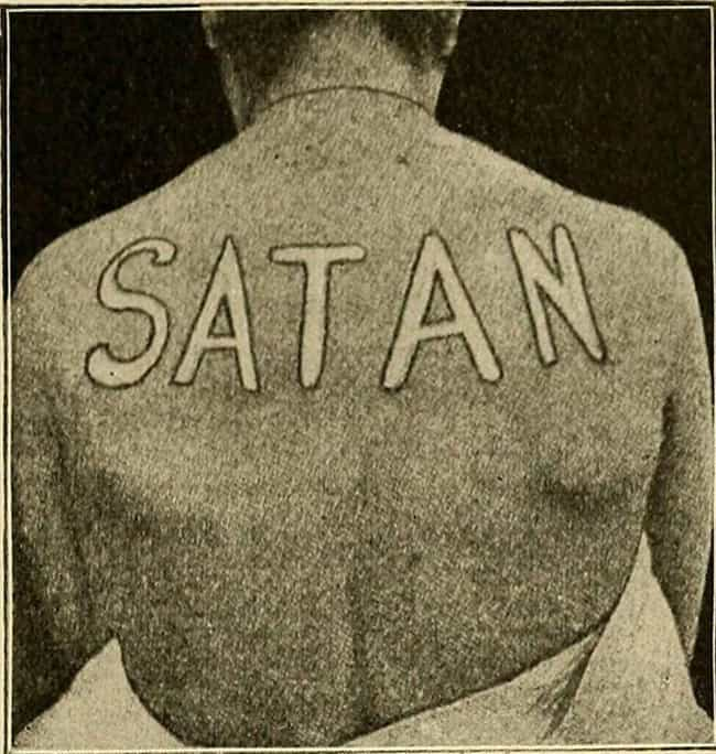 Dermographism Urticaria is listed (or ranked) 3 on the list The Very Human Science Behind Demonic Possession