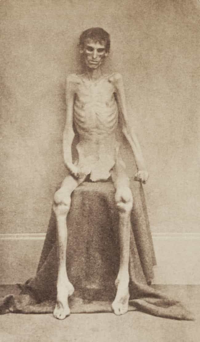 Starvation is listed (or ranked) 1 on the list Torture Techniques from Anderson Prison, The Scariest Place in the Civil War