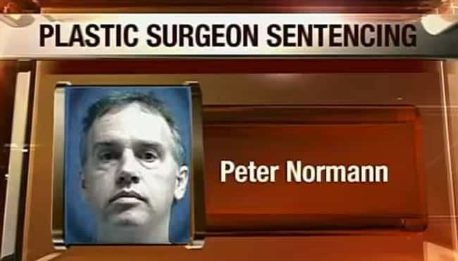 "Peter Normann's ""Extre is listed (or ranked) 5 on the list 10 Disgusting Crimes Committed by Plastic Surgeons on Their Patients"