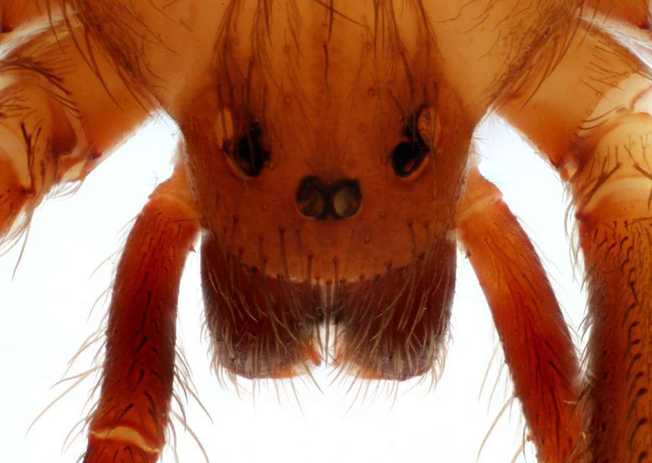 Brown Recluse Spider Venom Cau is listed (or ranked) 2 on the list 13 Disturbing Spider Facts That Will Make You Even More Scared Of Them