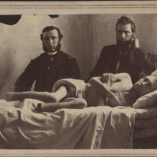 Amputation Was A Common And Gr... is listed (or ranked) 4 on the list 14 Grisly Facts About Civil War Battlefield Surgery
