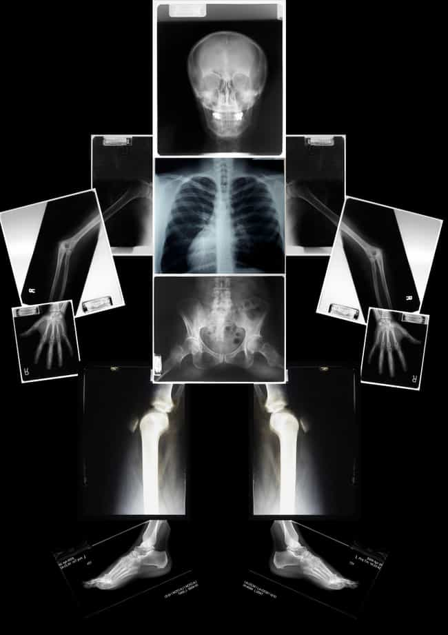 Frivolous X-Rays Were A Rich M... is listed (or ranked) 4 on the list The Most Ridiculous And Over-The-Top Status Symbols Throughout History
