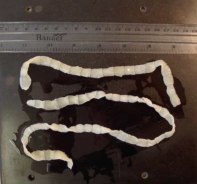 Victorians Ate Live Tapeworms is listed (or ranked) 1 on the list 12 Horrifying Weight Loss Techniques People From History Actually Tried