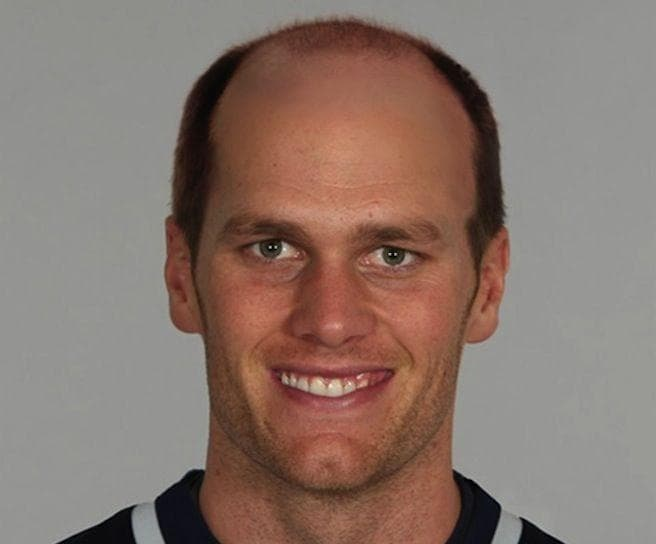 Bald Brady on Random Internet Expertly Trolled Tom Brady