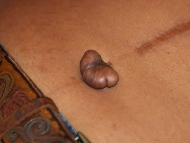 Keloid Scars is listed (or ranked) 2 on the list Horrible And Unexpected Piercing Side Effects