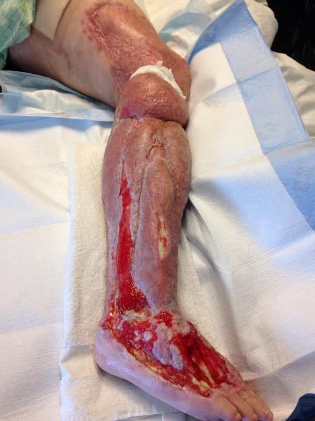 It Causes Your Flesh To Rot Aw... is listed (or ranked) 1 on the list 16 Horribly Disturbing Things That Flesh-Eating Bacteria Does To Your Body