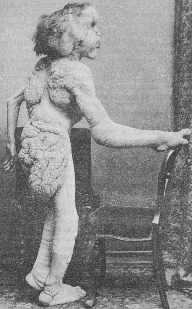 He Was Born A Healthy Ch... is listed (or ranked) 1 on the list Heartbreaking Facts About Joseph Merrick, The Elephant Man