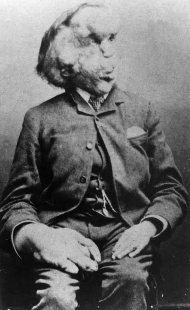 He Had Three Siblings Wh... is listed (or ranked) 2 on the list Heartbreaking Facts About Joseph Merrick, The Elephant Man