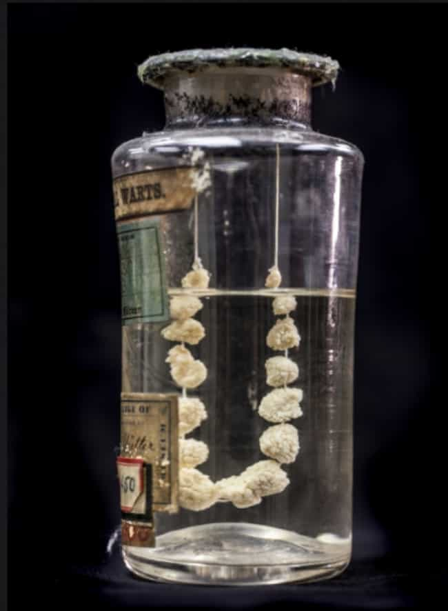 Genital Warts Necklace is listed (or ranked) 1 on the list 14 Super Weird And Disgusting Things On Display At The Mütter Museum