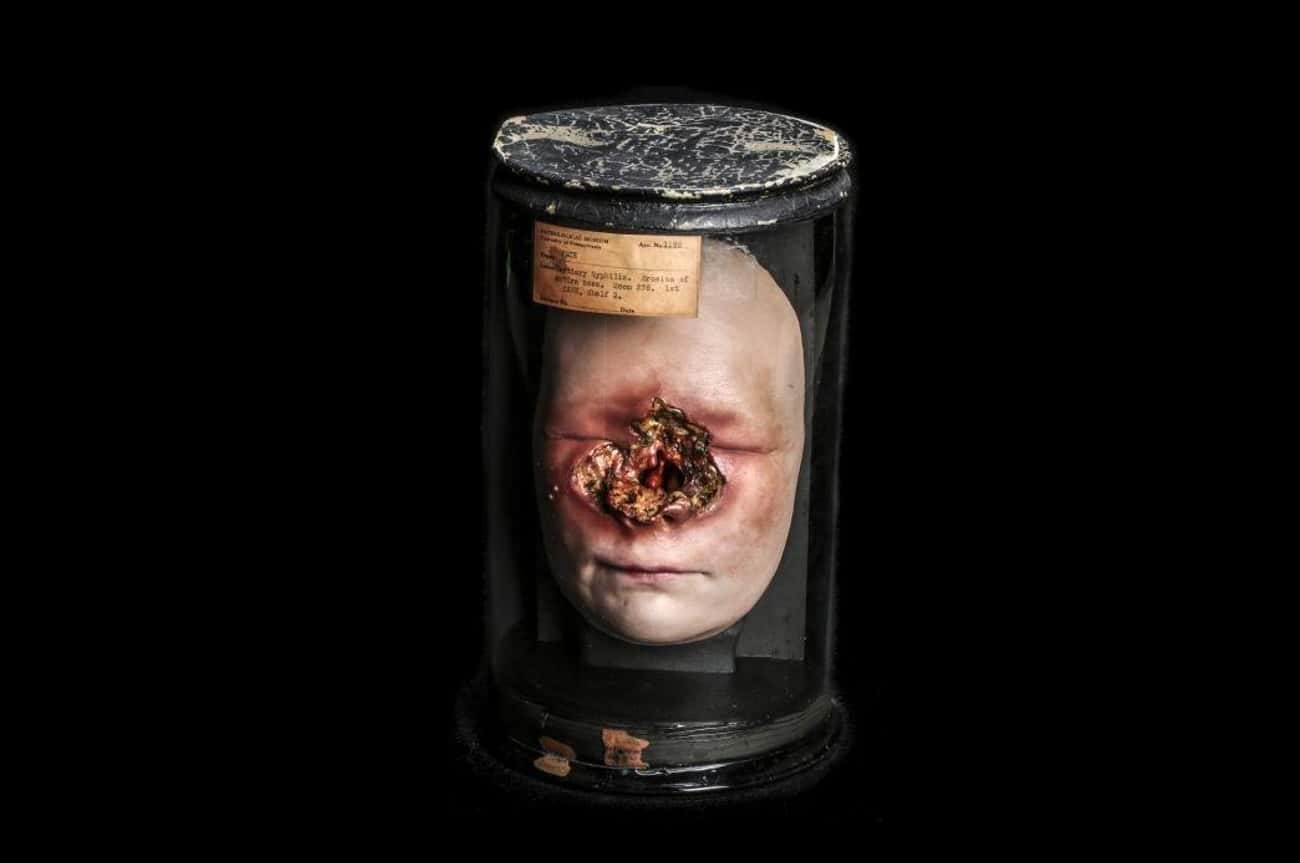 Syphilis Face Wax Figure is listed (or ranked) 4 on the list 13 Super Weird And Disgusting Things On Display At The Mütter Museum