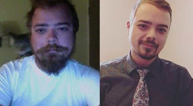 23 Amazing Before-And-After Photos Of People Who Quit Drinking